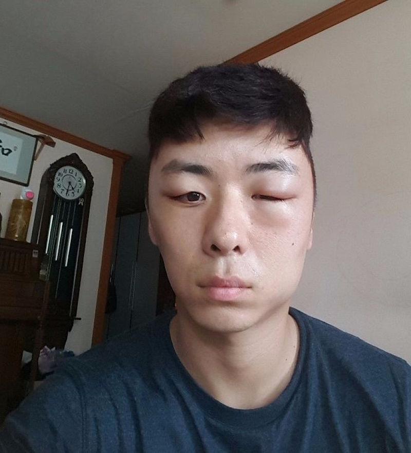 后来他整张脸像是被形状叮到一样肿起,特别是左边尤其明显.蜥蜴蜜蜂舌头图片