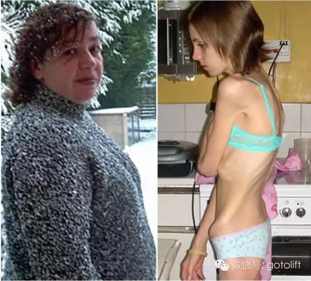 催吐減肥的結果,看完震驚!