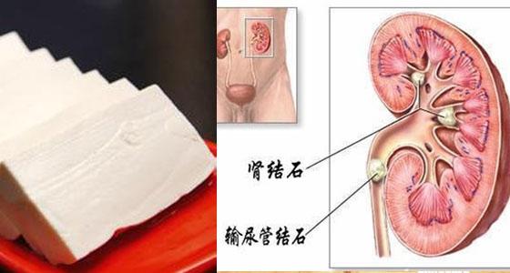 太可怕了!豆腐跟這8種食物一起吃~居然會得腎結石?! 更嚴重竟然還會..一定要分享出去!