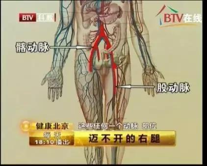 這個動作能讓你知道你的血管是否堵了,趕緊來測測!