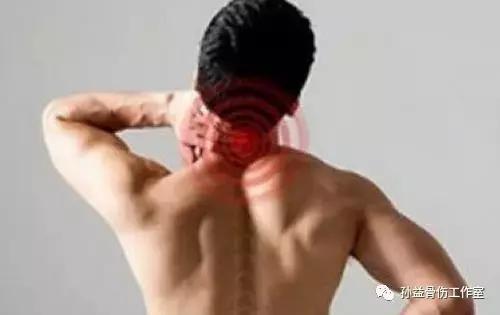 頸椎病? 肩周炎? 原來是肺癌!