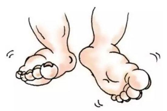 3個腳部信號暗示你身體有隱疾!
