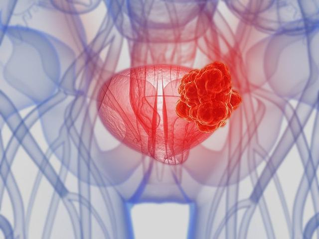 膀胱癌晚期會哪些症狀出現?